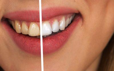 Atrae Pacientes con Estrategias de Marketing Digital para Dentistas